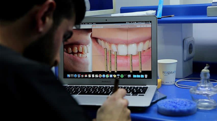 Dijital gülüş tasarımı kaç seans sürer