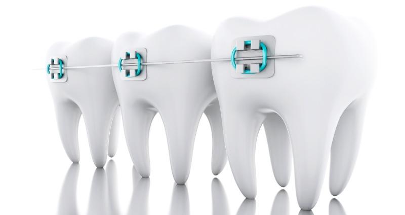 Diş teli ne kadar sürede takılır