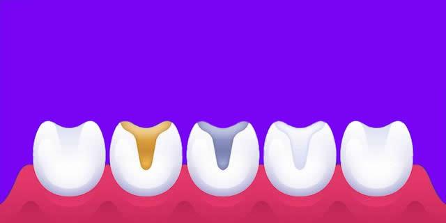 diş dolgusu çeşitleri