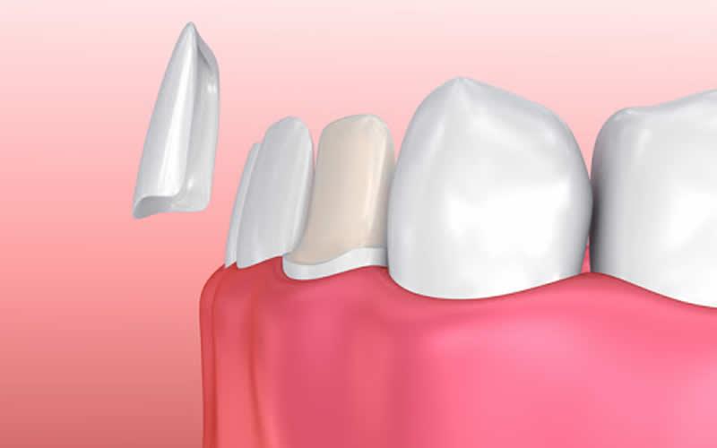 lamine diş çeşitleri