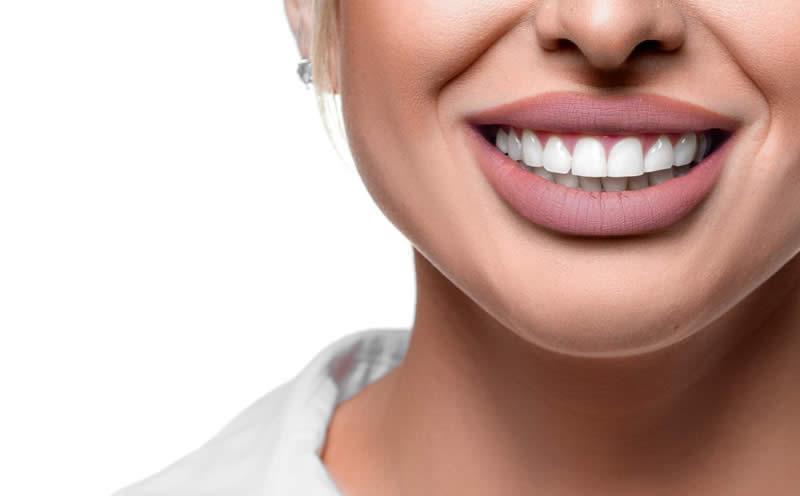 porselen dişlerin ömrü