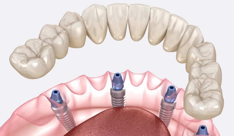 ileri implant tedavisi