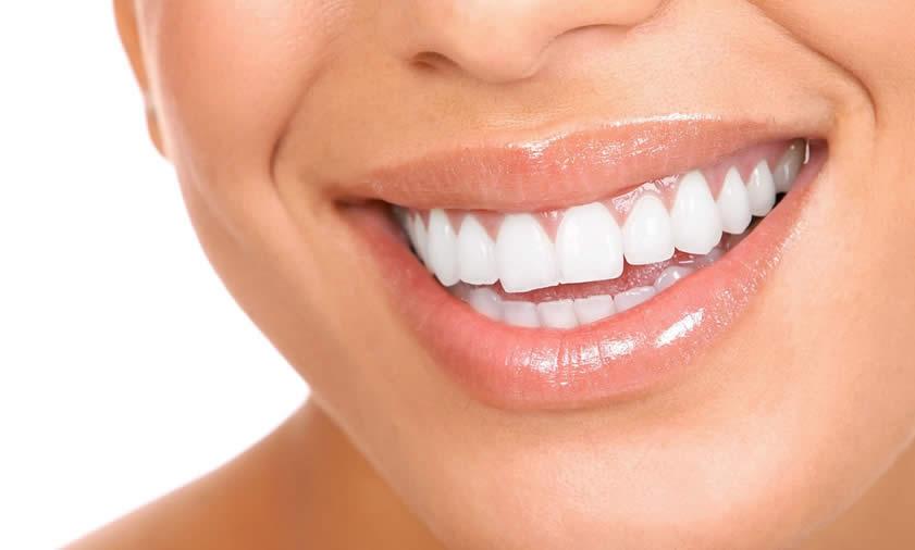 estetik diş dolgusu fiyatları