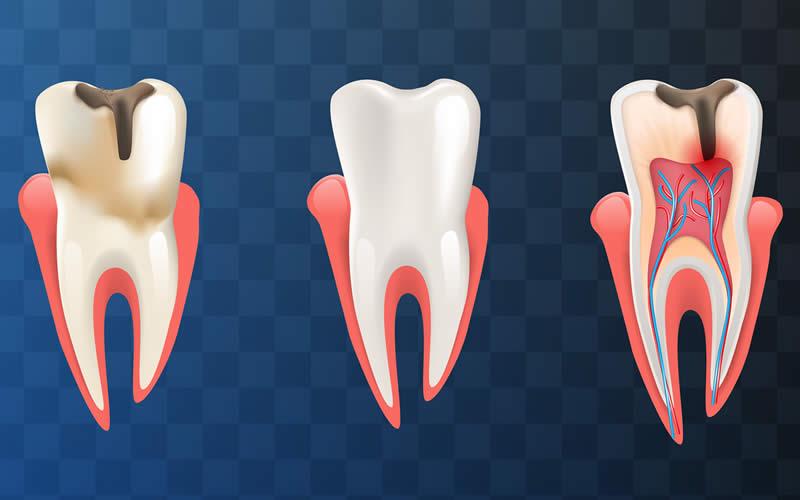 diş apsesi tedavisi nasıl yapılır