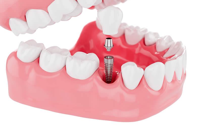 implant diş yapımı nasıl olur