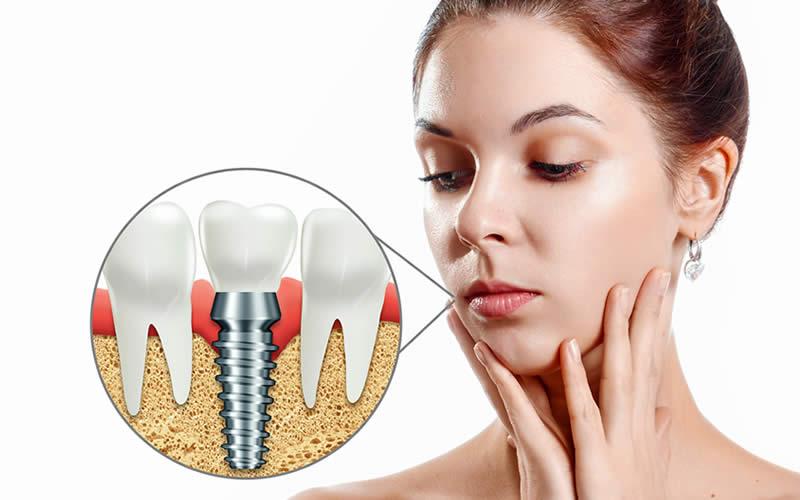 implant diş yapımı