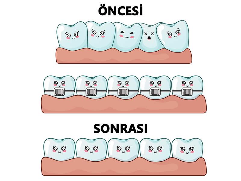 yamuk diş