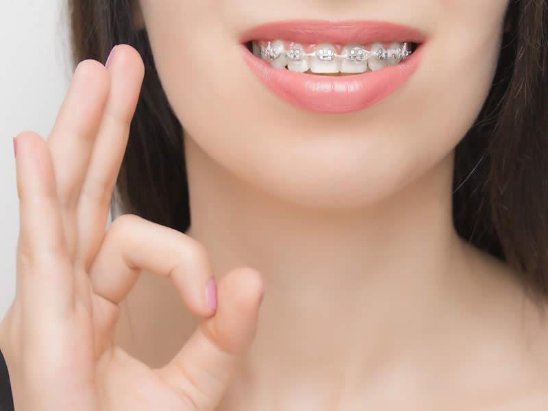 yetişkinlik döneminde çarpık diş