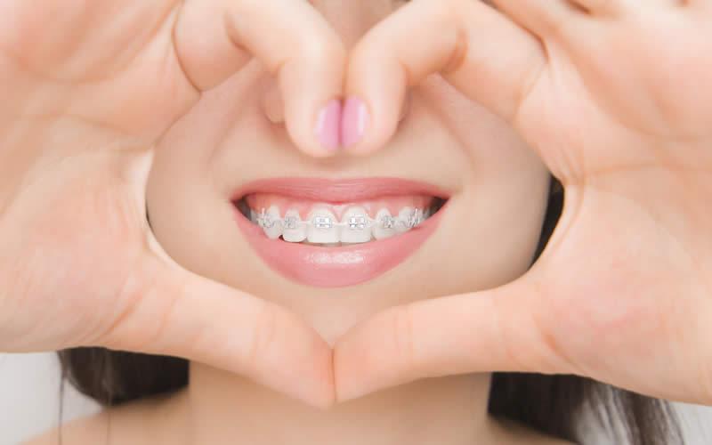 kaç çeşit diş teli vardır