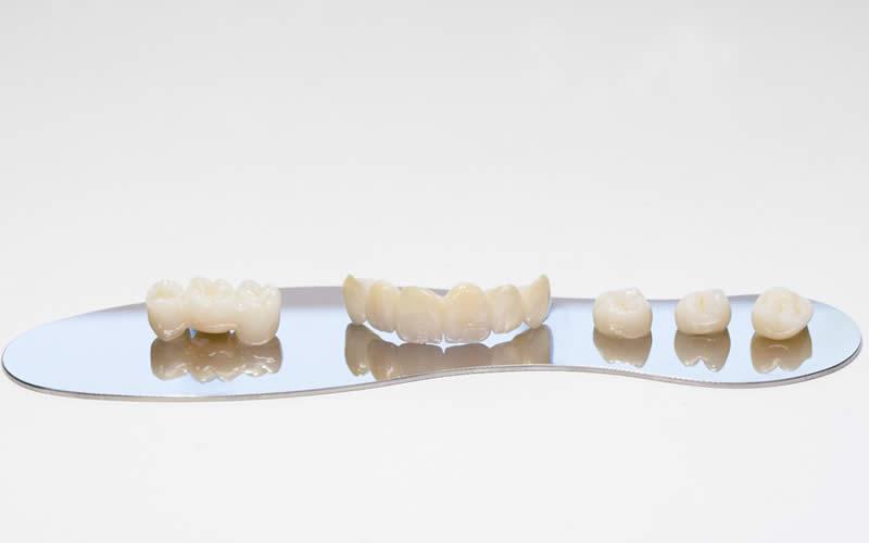 zirkonyum diş kaplama aşamaları