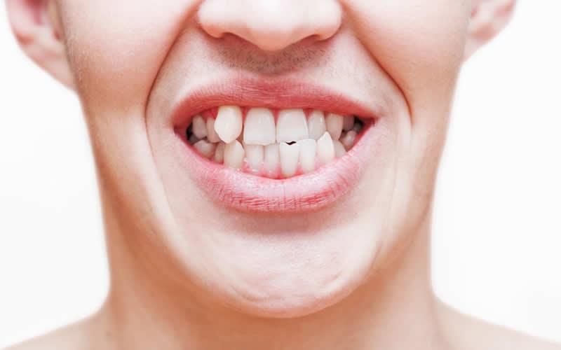 diş törpüleme neden yapılır