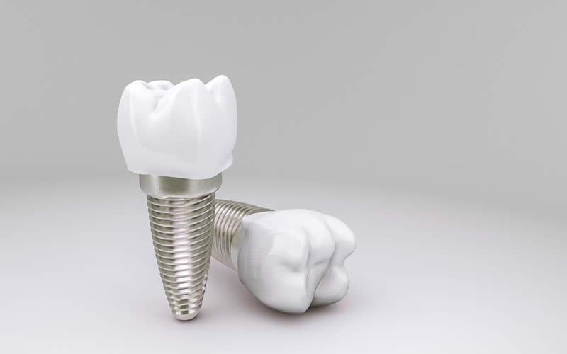implant fiyatları