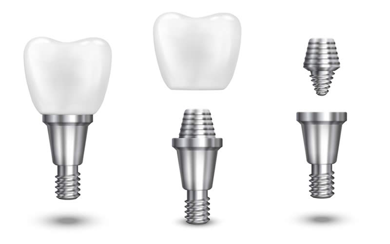 implant fiyatlarını etkileyen faktörler
