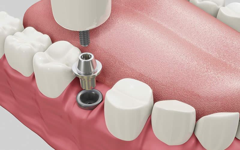 tek diş implant fiyatları 2021