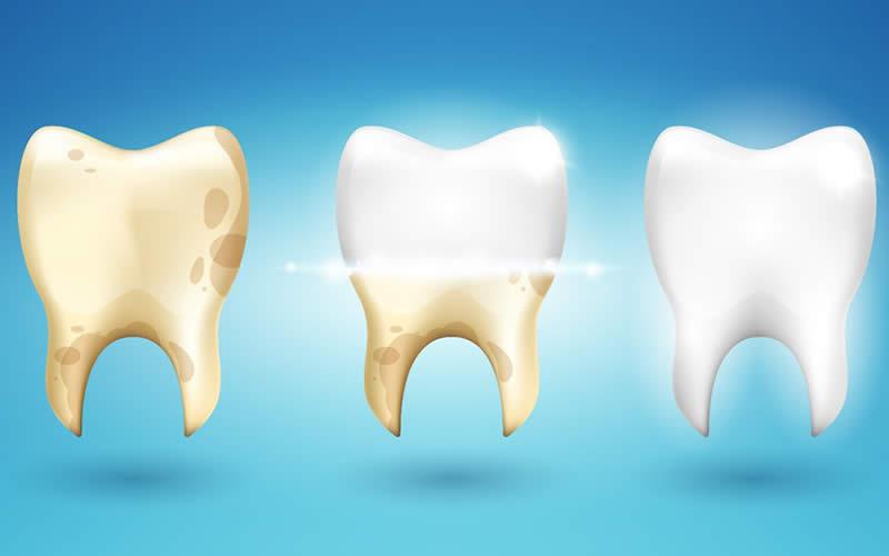 Diş sararması nasıl önlenir