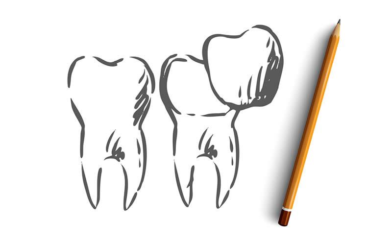 porselen diş fiyatları neye göre değişir