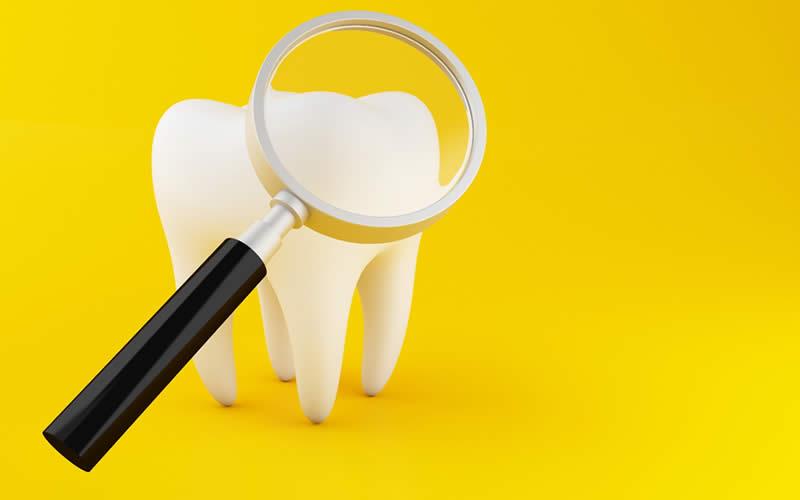 diş sararması için doğal çözümler