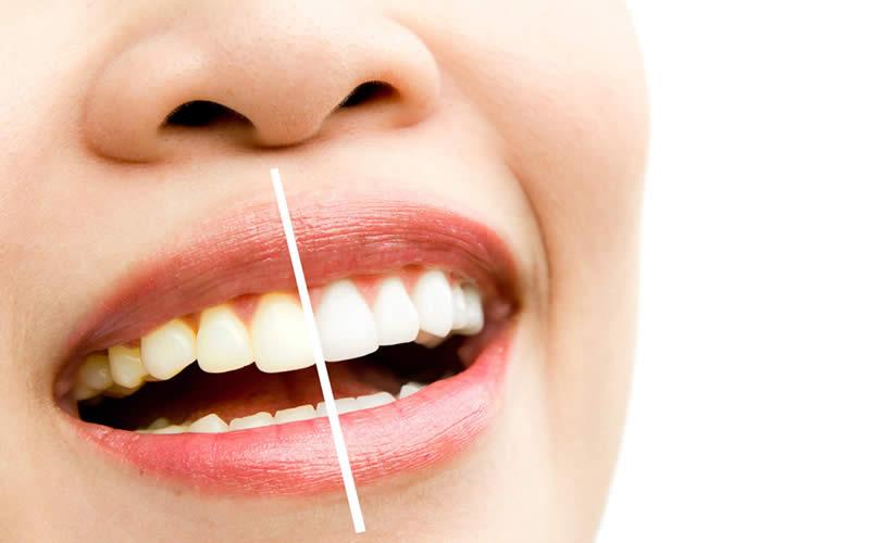 diş sararması