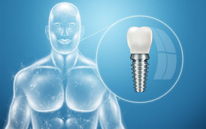 implant sonrası ağrı kaç gün sürer
