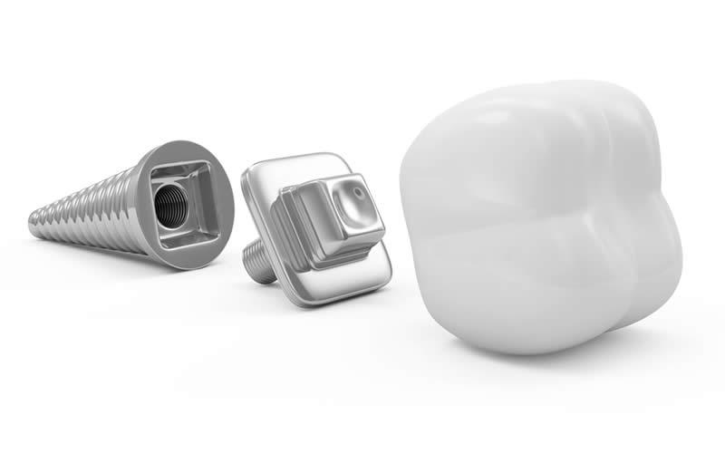 implantın tutmadığı nasıl anlaşılır