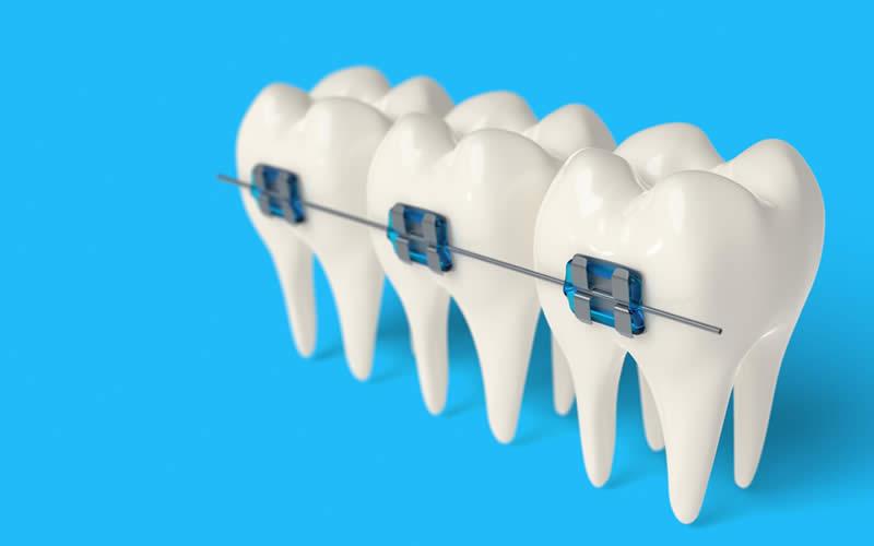 renkli diş teli avantajı