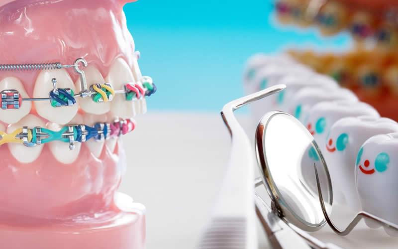 renkli diş telleri çeşitleri
